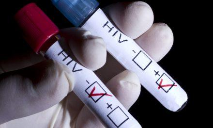 Detectan 274 casos de VIH en Hidalgo, de enero a octubre