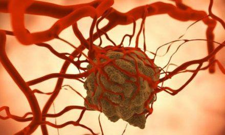 Tumores malignos, tercera causa de muerte en Hidalgo