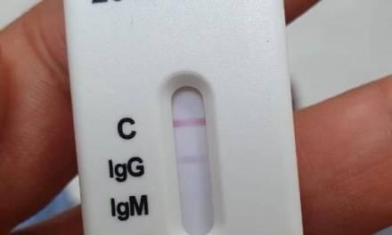 Gobierno de México muestra interés en vacuna rusa contra el COVID-19